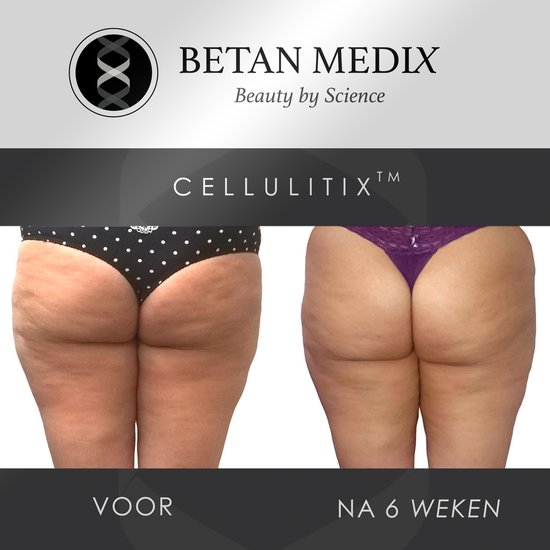 CellulitiX Anti Cellulitis Creme met Borstel - Hydraterende Bodycrème