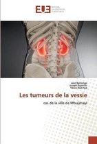 Les tumeurs de la vessie