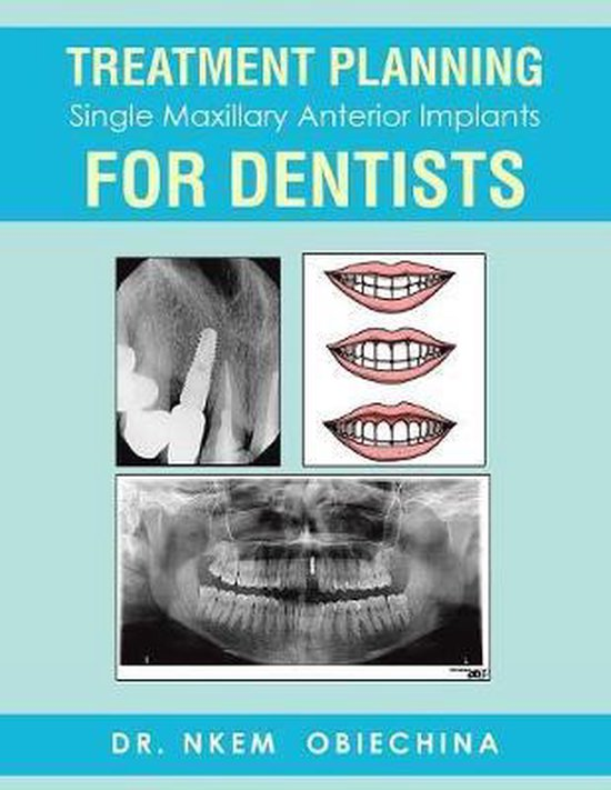 Treatment Planning Single Maxillary Anterior Implants for Dentists