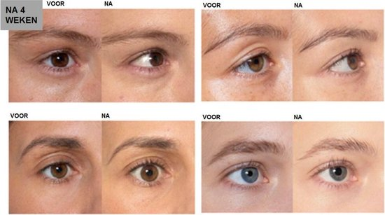 L'Oréal Paris Clinically Proven Wimperserum