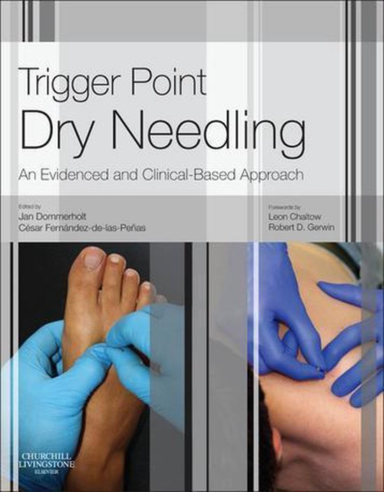 Boek cover Trigger Point Dry Needling E-Book van Jan Dommerholt, Pt, Dpt, Mps (Onbekend)