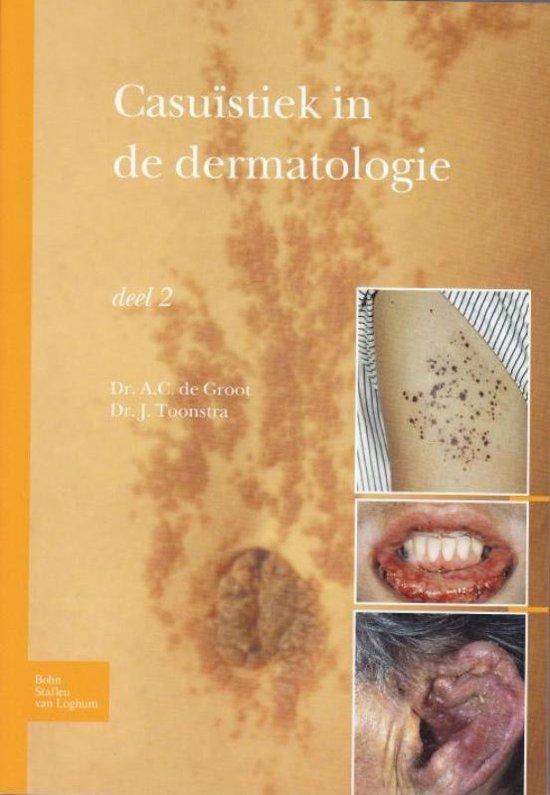 Casuistiek in de dermatologie - deel 2