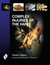 Complex Injuries of the Hand