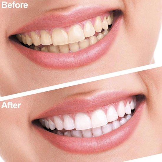 Tandbleekset Professional - Tandenbleekset - Witte tanden - Zonder peroxide - Zelf thuis je tanden bleken