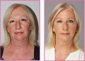 Facial Flex Accessoires + Elastiek Nr 1 Gezichtsfitness