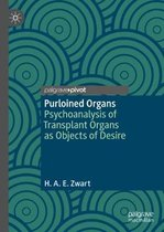 Purloined Organs
