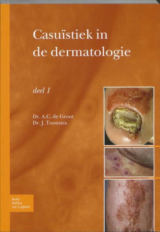 Boek cover Casuistiek in de dermatologie - deel i van Anton C Groot (Paperback)