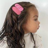 Setje meisjes haarspeldjes zebra | Roze | Meisje