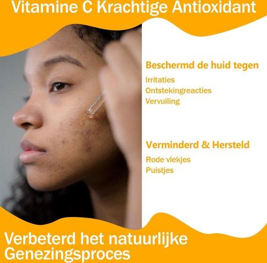 Vitamine C Serum | Met Vitamine E & Hyaluronzuur | Gezichtsserum | Gezichtsverzorging | Collageen | Anti Rimpel | Anti Acne | Tegen Pigmentvlekken | 30ml