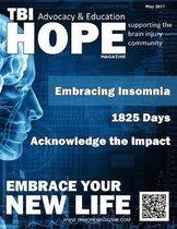 Tbi Hope Magazine - May 2017