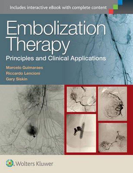 Embolization Therapy