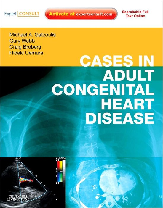 Cases in Adult Congenital Heart Disease - Expert Consult: Online and Print