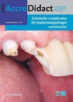 AccreDidact TA2017-2 -   Technische complicaties bij implantaatgedragen constructies