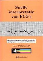 Snelle interpretatie van ECG's
