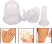 Premium Kwaliteit Cupping Set (5-Delig) - Lichaam & Gezicht - Cellulite Cups - Anti Sinaasappelhuid - Anti Cellulitis Massage - Vacuüm Massage Therapie - Complete Voordeelset met Massage Roller