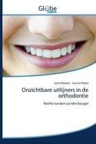 Onzichtbare uitlijners in de orthodontie