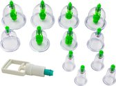 Cupping Cups – Cupping Set Massage – Anti Cellulite Cupping – Cupping Therapy – Set van 12 met pomp