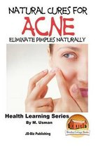Natural Cures for Acne