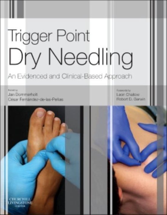 Boek cover Trigger Point Dry Needling van Jan Dommerholt (Hardcover)