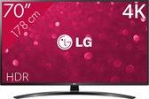 LG 70UM7450 - 4K TV