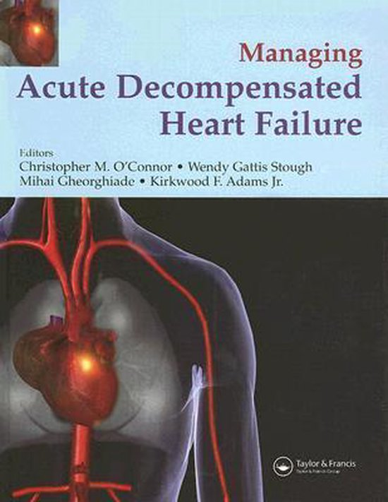 Boek cover Management of Acute Decompensated Heart Failure van Christopher OConnor (Hardcover)