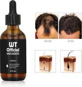 WT Official - Haargroeistimulator - Alternatief voor Minoxidil 5% - Haaruitval - Haar Groei Serum - Baardgroeimiddel - Baard Groei - Baard Stimulator - Biotine -Biotin - Haargroei - Baardgroei - Magic Beard - Baardolie - Haarverlies - Baardverzorging