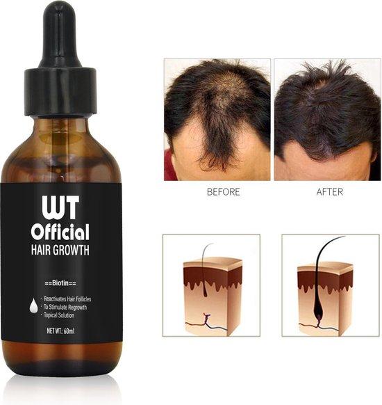 Haarserum - Haargroei stimulator - Tegen Haaruitval - Baardgroeimiddel