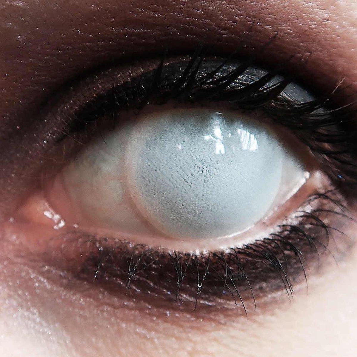 Blind white- 1 dag fun lenzen - Halloween Carnaval Party - XtremeEyez - per 2 - MesmerEyez