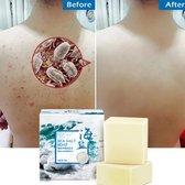 Kaise zeezout zeep cleaner-Verwijdering puistje-Poriën-Acne behandeling-Psoriasis-Geitenmelk Hydraterende-Gezichtsverzorging-Lichaamverzorging