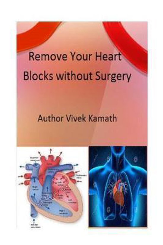 Remove Your Heart Blocks Without Surgery