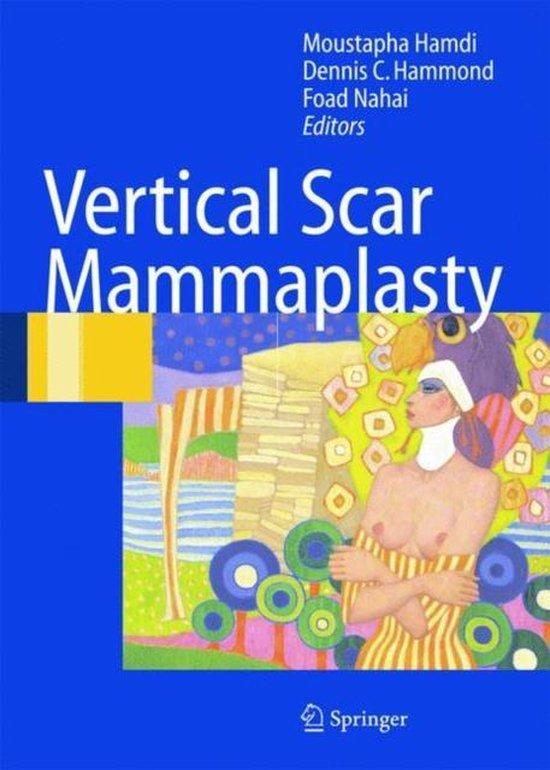 Vertical Scar Mammaplasty