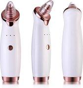 Sylk Blackhead Remover - Vacuum Pore Suctlon Cleaner Inclusief 5 opzetstukken
