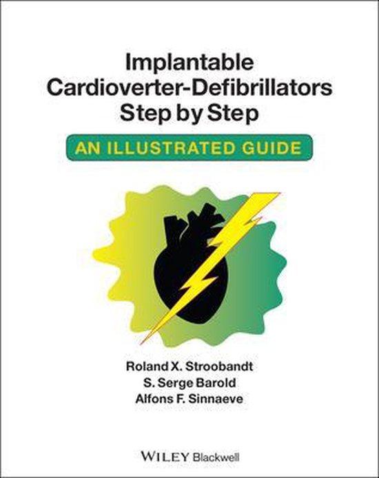 Implantable Cardioverter - Defibrillators Step by Step