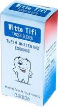 Witte Tanden - TandenBlekers - Tanden Bleken - Tandenbleken - Wittere Tanden - Teeth Whitening - White Teeth - Facings - Witte Glimlach - White Smile - Tanden Blekers - Charcoal Poeder - Tandsteen Verwijderaar - Tandplak Verwijderen - Tanden Strips