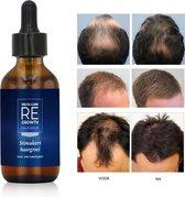 Regrowth® Haargroei serum   Alternatief voor Minoxidil 5%   Haargroei stimuleren - Baardgroei - Haargroei Producten tegen Haaruitval - Haar Vitamines - Biotine Haar - Haargroei Olie - Haar Serum - Baardolie - Baardverzorging - Haarserum - Haarolie