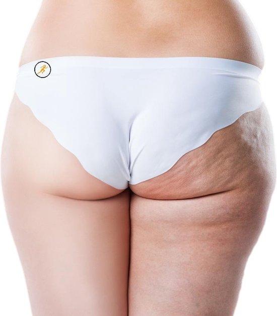 Hoogste Kwaliteit Cellulite Cups - Anti-Cellulite Cups - 4 stuks