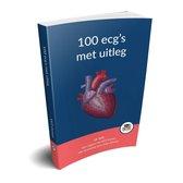 100 ecg's met uitleg - Hét ECG-boek van 2021