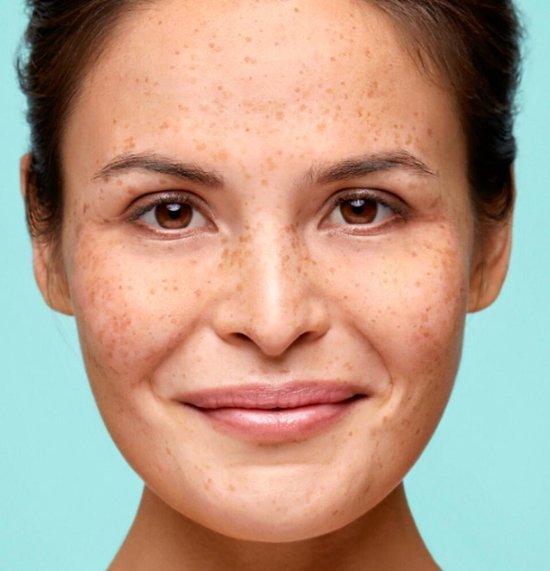 Biodermal Anti Age Oogserum - Oogcreme anti rimpel vrouw - 15ml