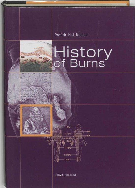 History Of Burns - H.J. Klasen |