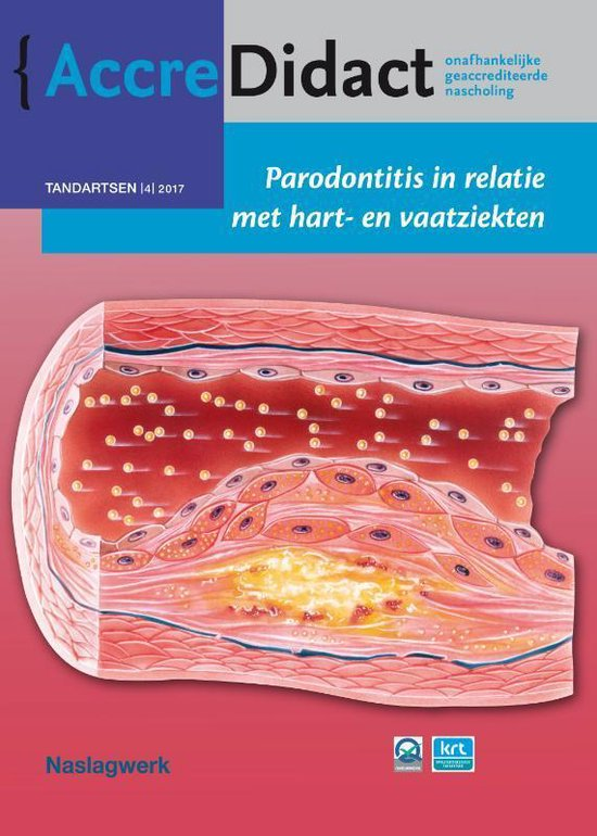 AccreDidact TA2017-4 -   Parodontitis in relatie met hart- en vaatziekten