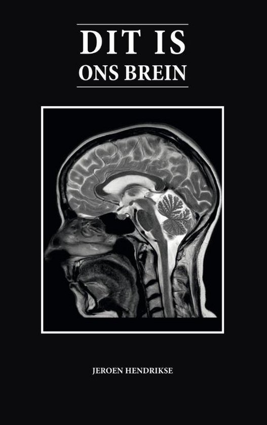 Dit is ons brein - Jeroen Hendrikse | Readingchampions.org.uk