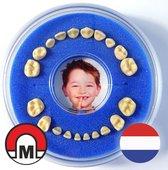 Koelkastmagneet / Tandendoosje > Firsty® Round Magnetic < (Jongen, Blauw)
