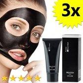 3 x Blackhead Masker Deluxe | Mee eters verwijderen dankzij het Zwarte masker