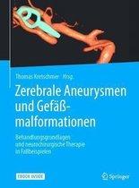 Zerebrale Aneurysmen Und Gefassmalformationen