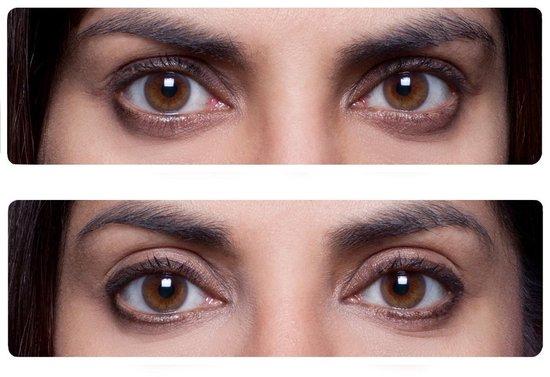 Easy Lift Ooglitstickers Ooglidtape Ooglidstickers - Lift je oogleden zonder operatie - Tegen hangende ogen