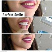 Kunstgebit | SnapOnSmile | Mooie tanden | Tand reparatie | Facings | Kunst tanden | Nep gebit