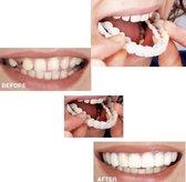 Kunstgebid - Facings - Witte Tanden - Kunst Tanden