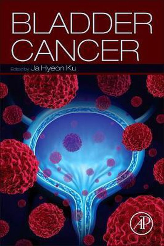 Boek cover Bladder Cancer van Ja Hyeon Ku (Paperback)