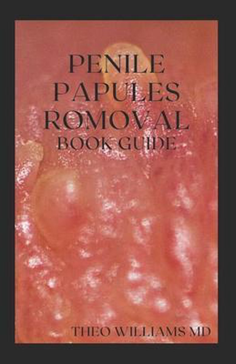 Papules what are penile Pearly penile