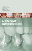 De partiële gebitsprothese
